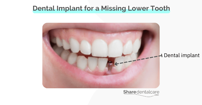 An implant for a missing lower front tooth.