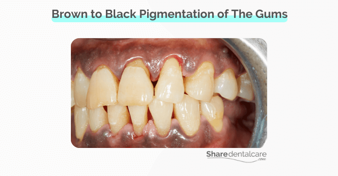 Brown to Black Pigmentation of The Gums