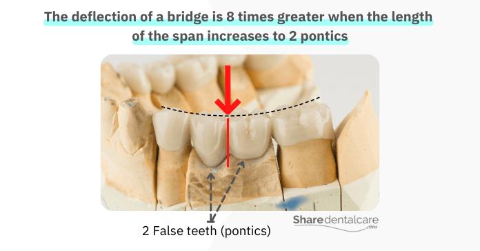 A dental bridge broke in half due to great deflection