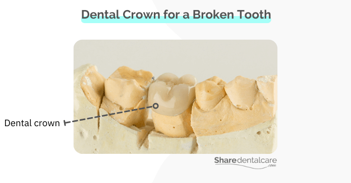 Dental crowns are the most common type of teeth covers for a broken tooth