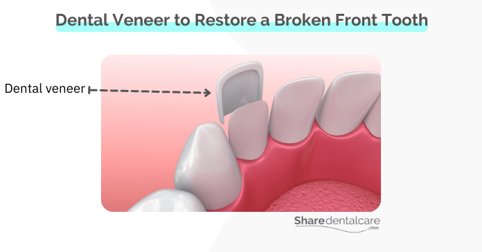 A dental veneer to restore a chipped front tooth