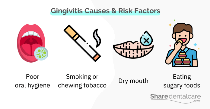 Gingivitis causes and risk factors