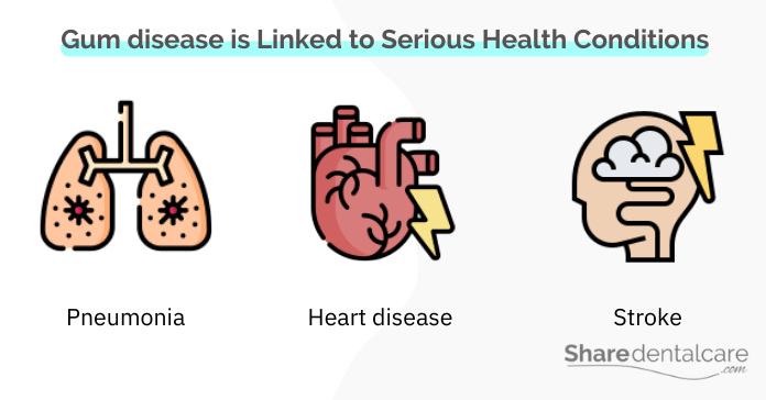Gum disease is linked to serious health problems