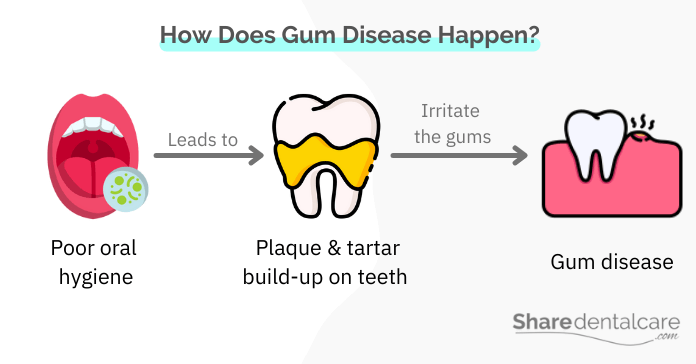 Gum disease occurs due to poor oral hygiene and plaque build-up