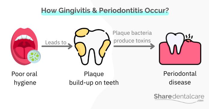 How gingivitis and periodontitis occur