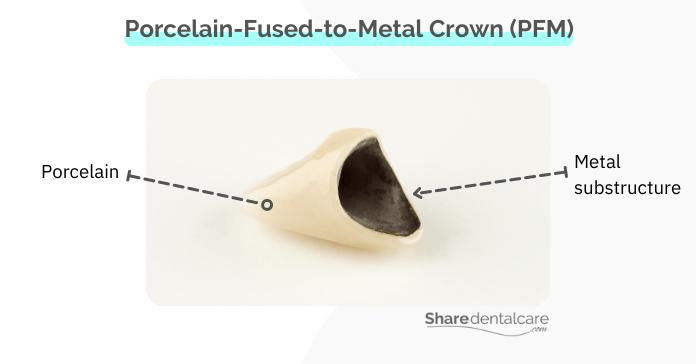 Porcelain-fused-to-metal-crown (PFM)