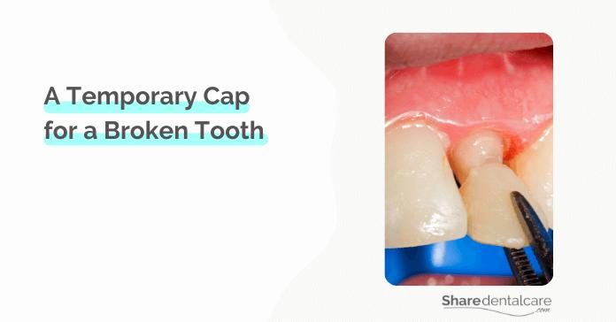 Temporary Cap for a Broken Tooth