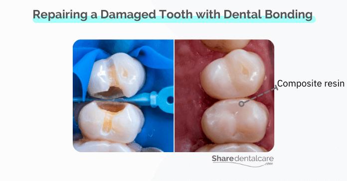Dental bonding to repair damaged or broken teeth