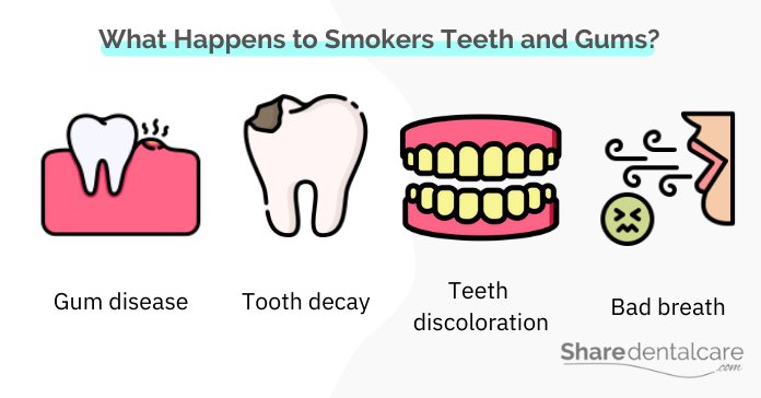 Teeth and gums problems that smokers suffer from